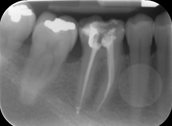 endodonzia_3